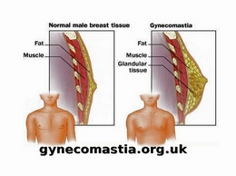 https://gynecomastia.org.uk/ website