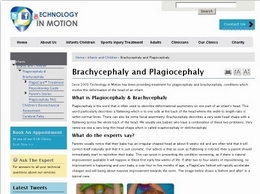 https://www.technologyinmotion.com/plagiocephaly/ website