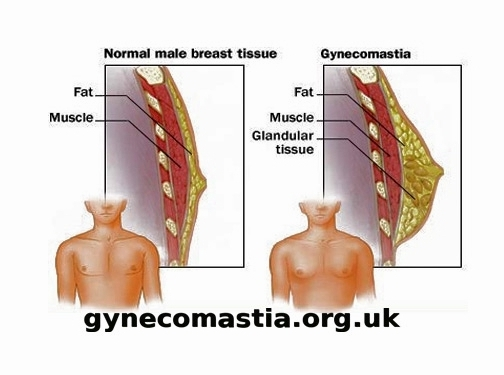 http://gynecomastia.org.uk/ website